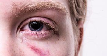 ozlijeda oka