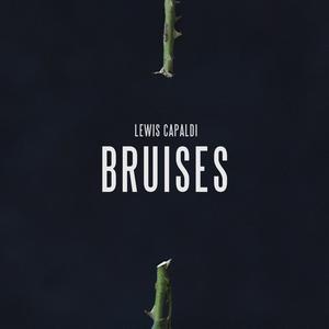 Bruises -